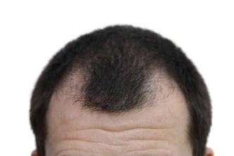 Wie Dein Dünnes Haar Voller Aussieht Barber Trends