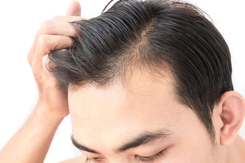 Mit halbglatze männerfrisuren Lange Haare