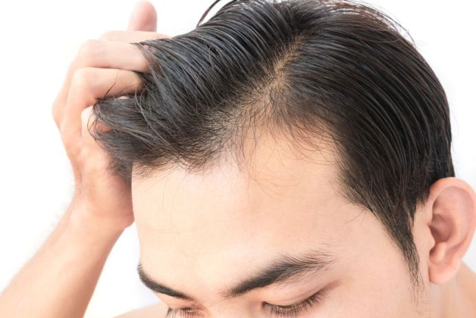 Geheimratsecken männer mit Frisuren Mit