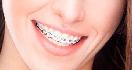 prótese-total-dentadura