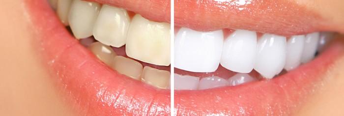 plano-odontológico-com-clareamento-dental