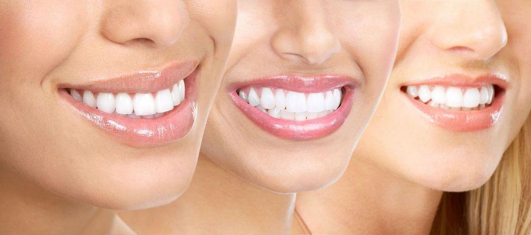 Plano Odontológico Completo por R$ 115/mês e R$ 147,00/mês 5 (1)