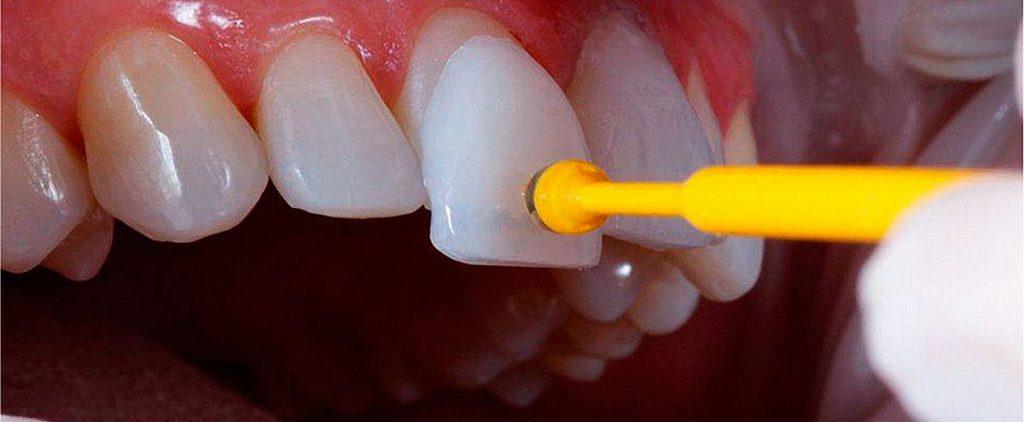 Plano Dental cobre Faceta a partir de 115,00/mês sem carência no cartão 4 (5)