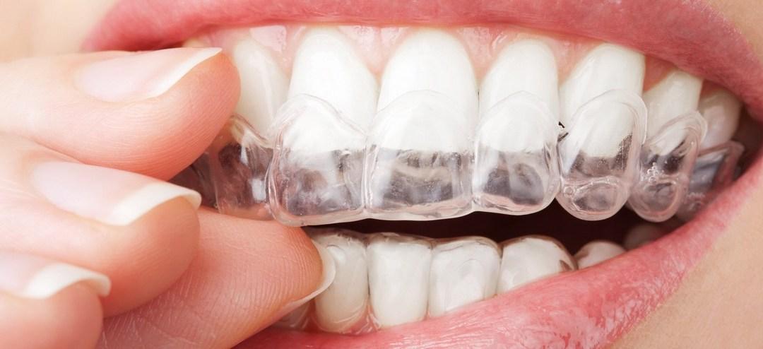 plano-odontológico-com-placa-de-bruxismo-banner