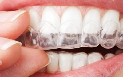 Valor da Placa de Bruxismo no Plano Dental, descubra aqui ! 0 (0)
