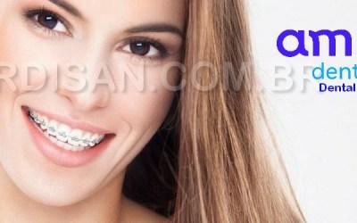 Dental E45, Manutenção Ortodôntica Completa com Clareamento ! 5 (1)