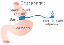 бандажирование желудка схема операции с применением системы Bioring