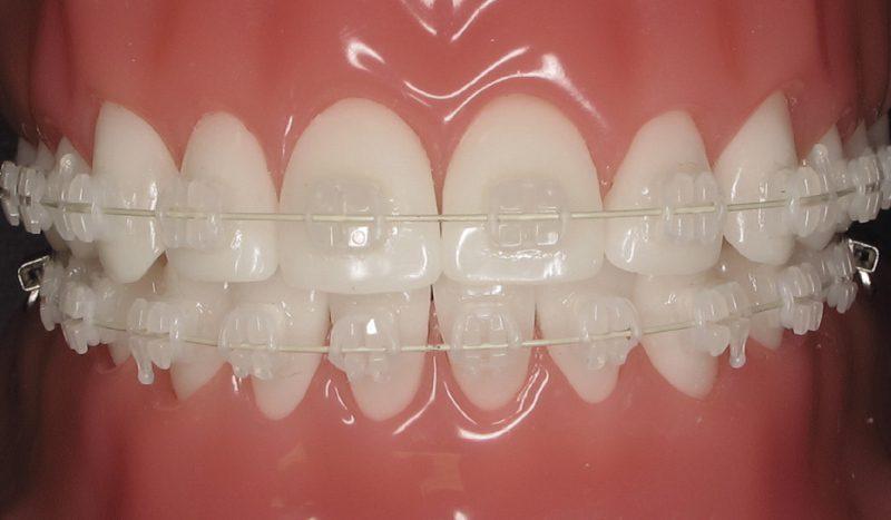 advantages of ceramic braces