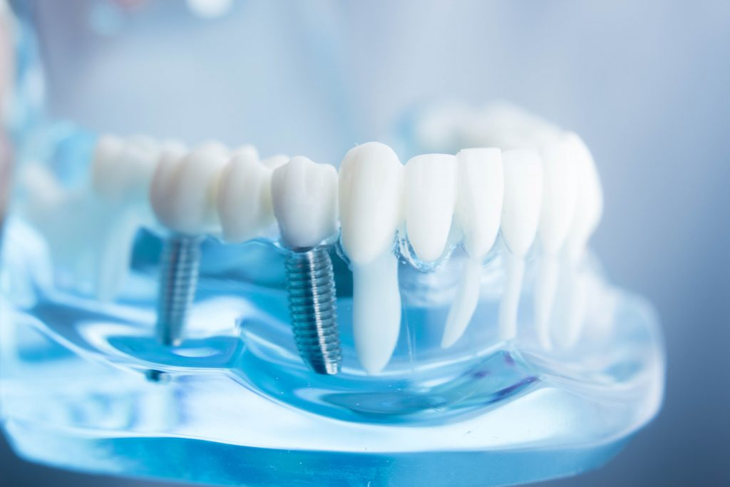 dental implants for all ages