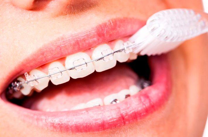 what is it like to wear braces