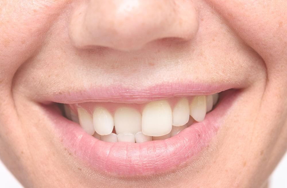straighten one tooth