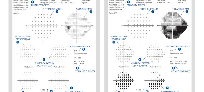HFA Tip Sheet