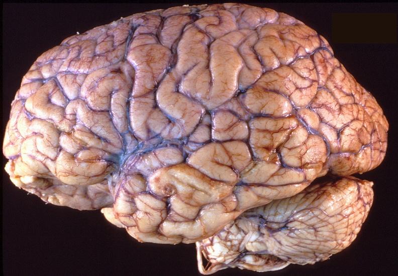 علاج مرض الالزهايمر عبر خرق الحاجز الدموي الدماغي لأول مرة!