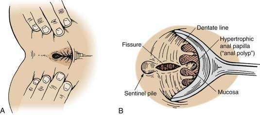 Sphincterotomy for anal fissure