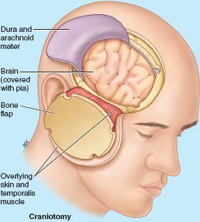 Head | Basicmedical Key