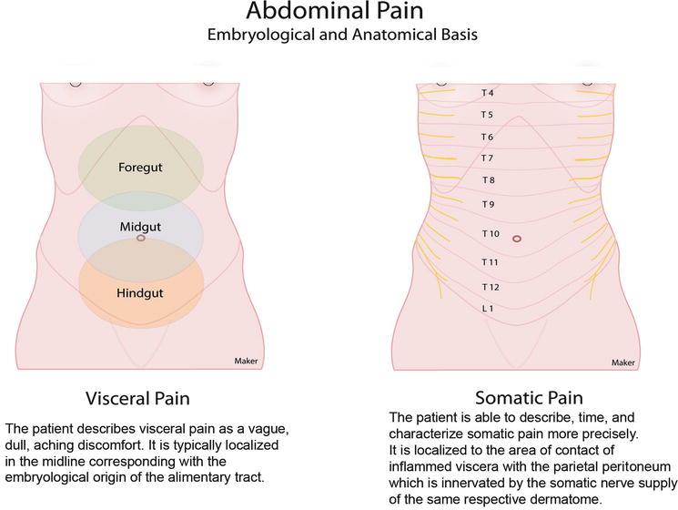 Abdominal Pain Basicmedical Key