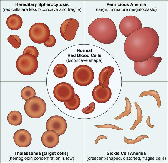icd 10 code sickle cell disease