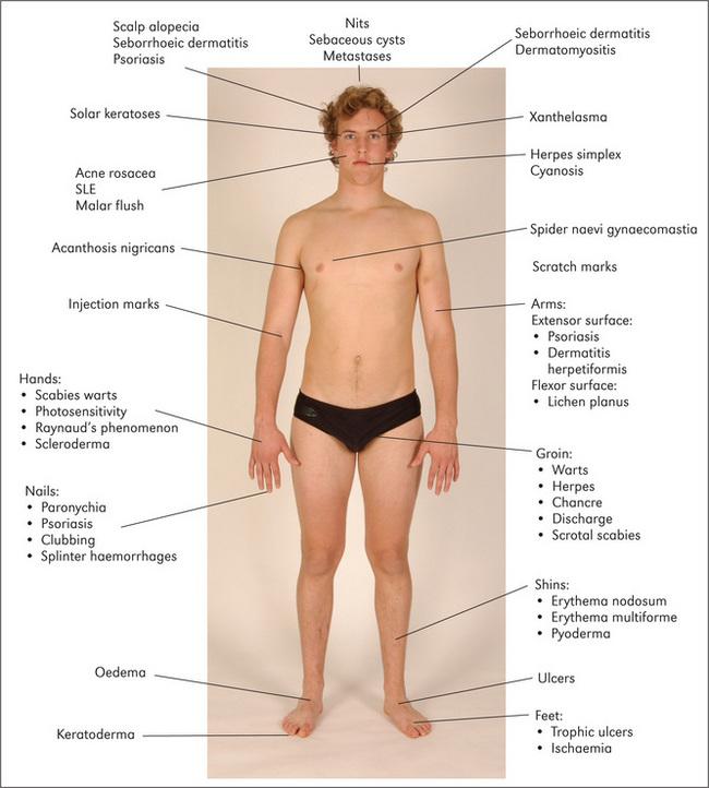 The skin, nails, and lumps | Basicmedical Key
