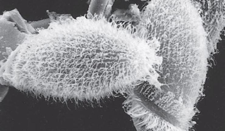 metopus