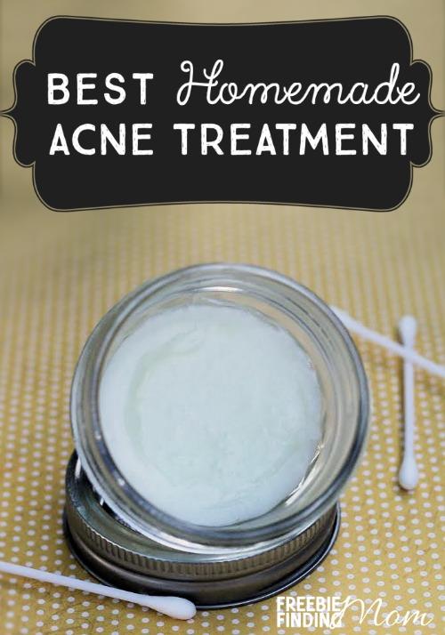 best-homemade-acne-treatment-pin