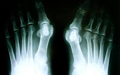 Lumpy and sore big toe? Read on as we dissect the Bunion.