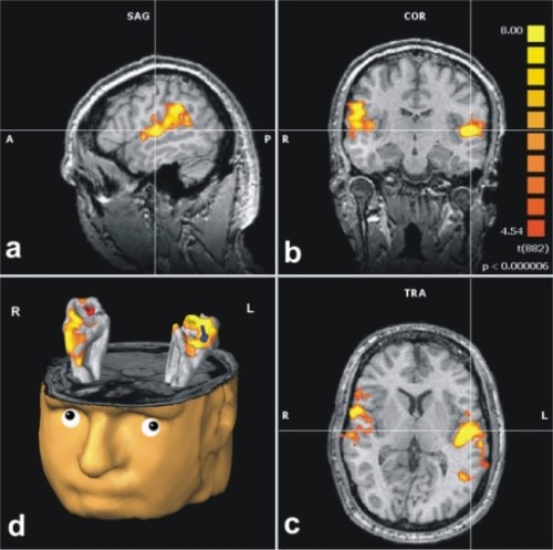 auditory-cortex