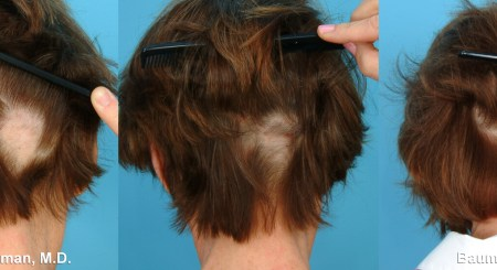 Tips for Hair Re-boom Sooner After a Hair Transplant