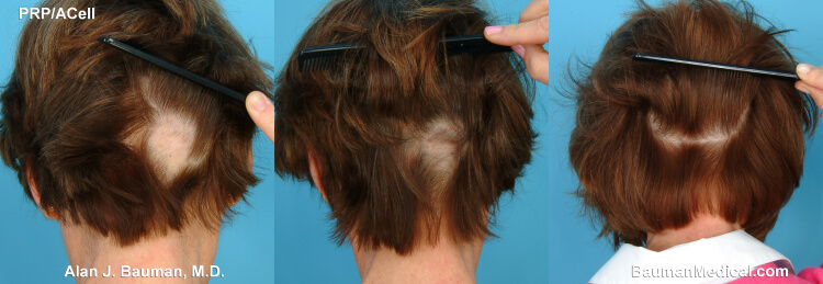 Image result for alopecia areata in women chart