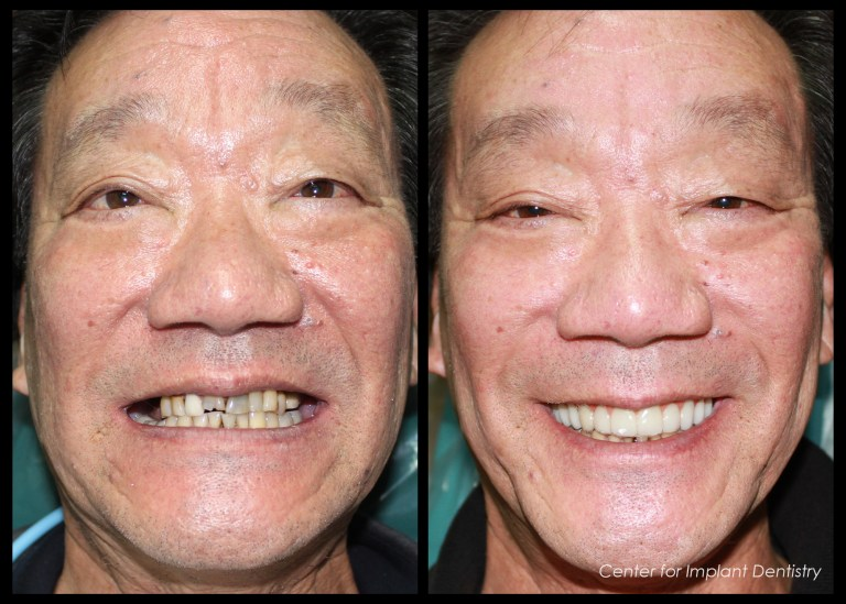 full-face-before-and-after21