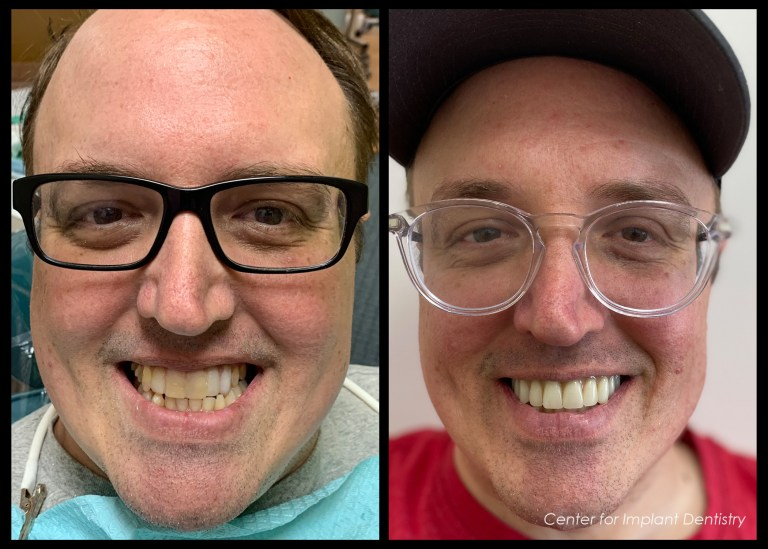 full-face-before-and-after35