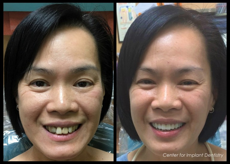 full-face-before-and-after15