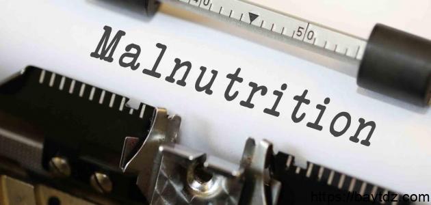 أالمراض الناتجة عن سوء التغذية