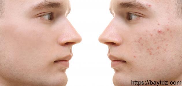 أفضل طريقة لإزالة حبوب الوجه