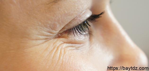 إزالة التجاعيد حول العين