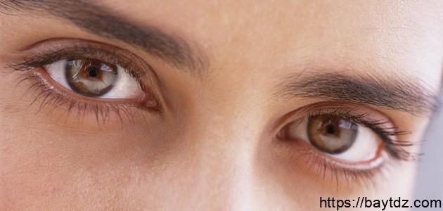 حول العين البسيط وعلاجه بيت Dz
