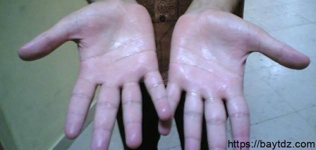 كيف أتخلص من تعرق اليدين