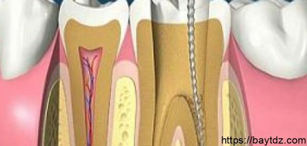 سحب العصب للاسنان هل سحب عصب السن مؤلم سحب العصب الاسنان الاماميه كوروش