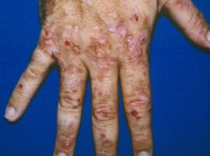 Figure 1. Chronic blistering of VP patients when exposed to sunlight