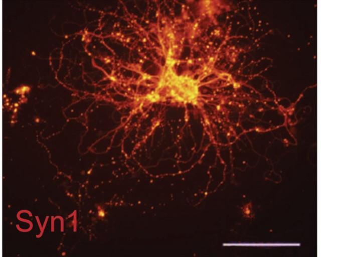 expression of synapsin in differentiated neuron Chen et al