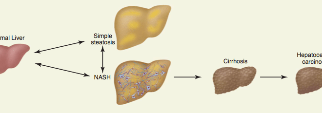 Stop the Inflammation! The Role of Bile Acid Receptor Agonists in Attenuating the Progression of NAFLD