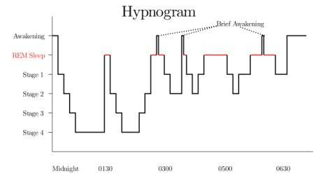 Figure 1. Unspecified hypnogram to illustrate REM and the various stages of NREM sleep. (Source: google images)