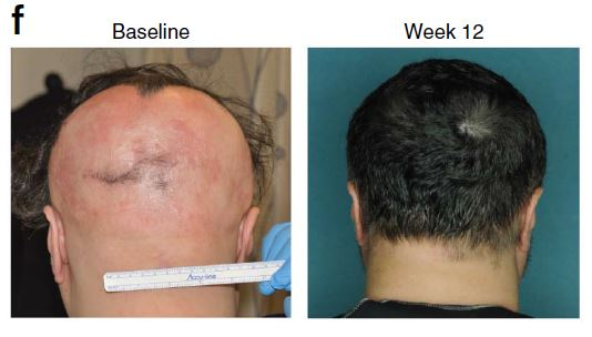 Figure 6: Nearly 100% hair regrowth was seen after 12 weeks of daily treatment with ruxolitinib (a JAK 1/2  inhibitor) (Source: Xing et. al. 2014)