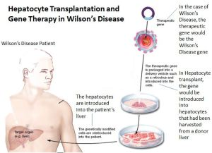 The figure above shows how gene transfer and hepatocyte transplantation come together as a treatment for Wilson's Disease (Original image from Google Images, modified and Annotated by KC)