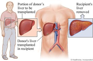 This figure shows the basics of a liver transplant. The Patient's diseased liver is removed