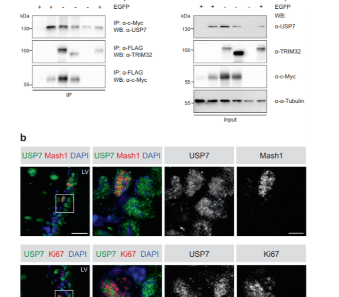 Ubiquitination in Neural Cell Determination