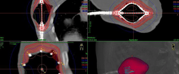 partial-breast-irradiation
