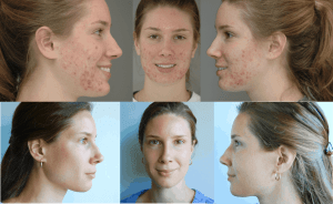 Dietary Alternatives to Gut-Altering Acne Medications
