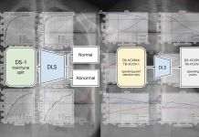 Deep learning chest radiography