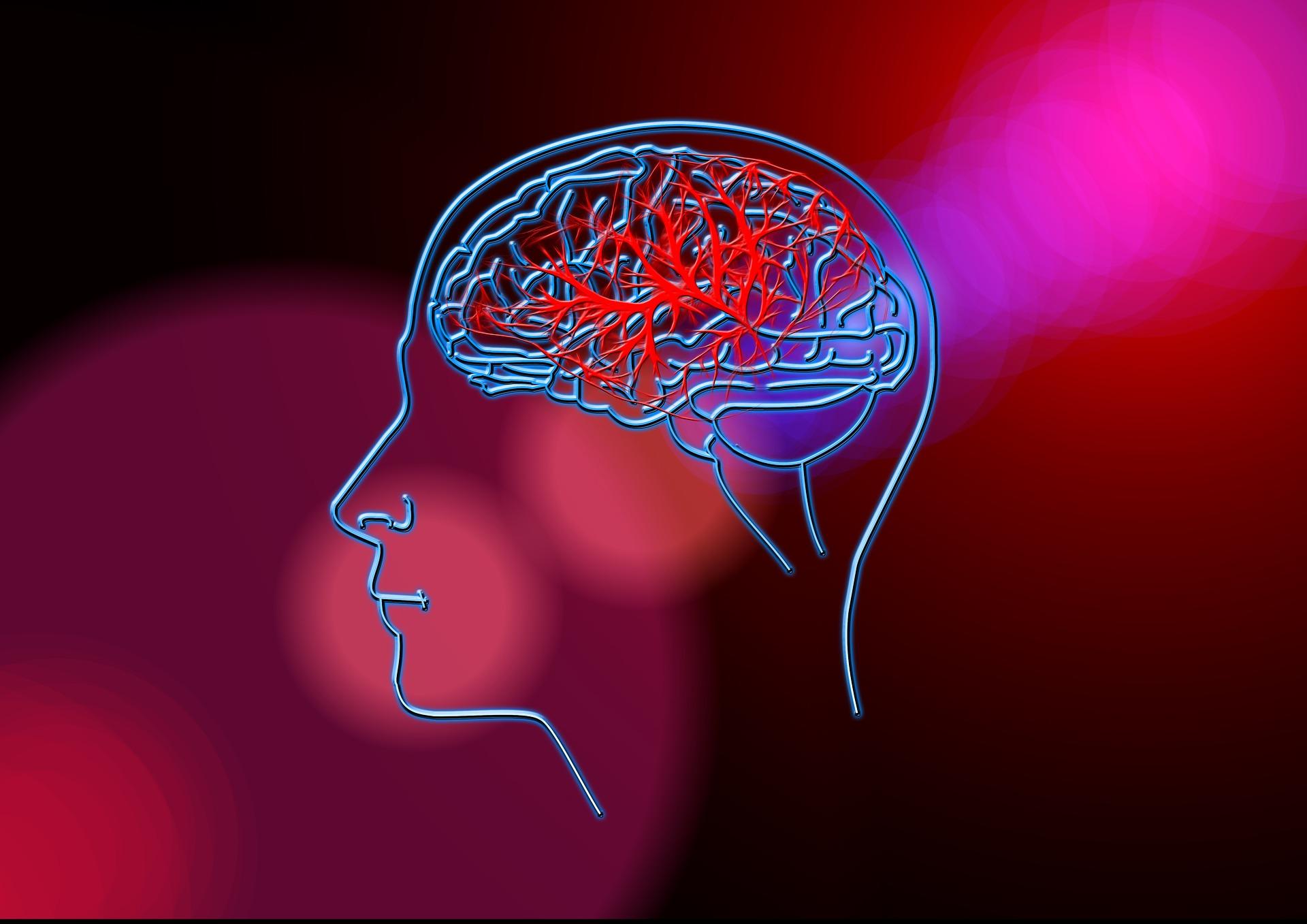 What is Brain Stroke?