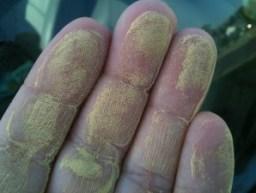 pollen_hand
